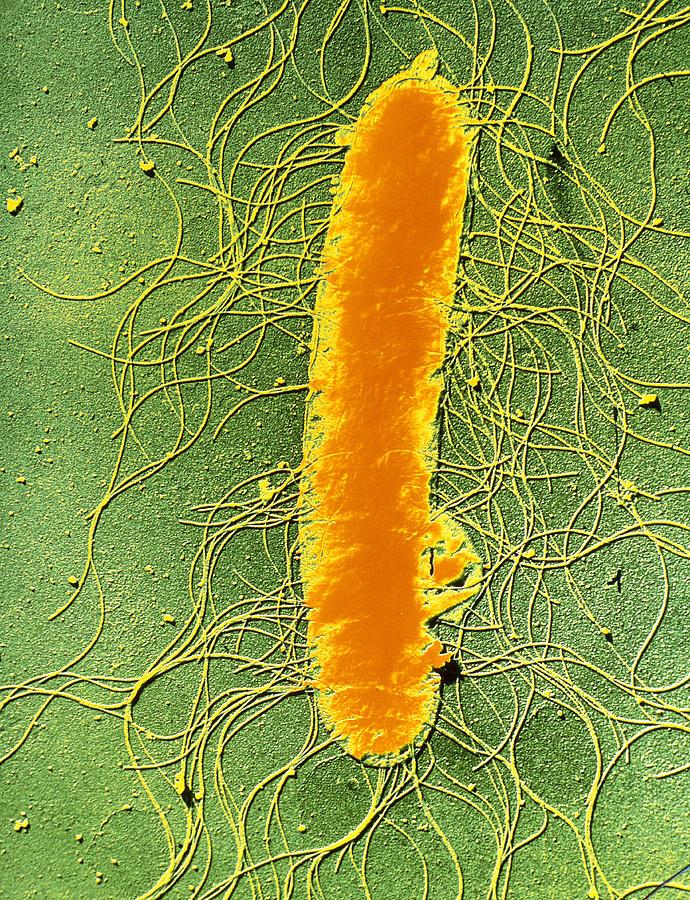 Proteus mirabilis bacterium photograph