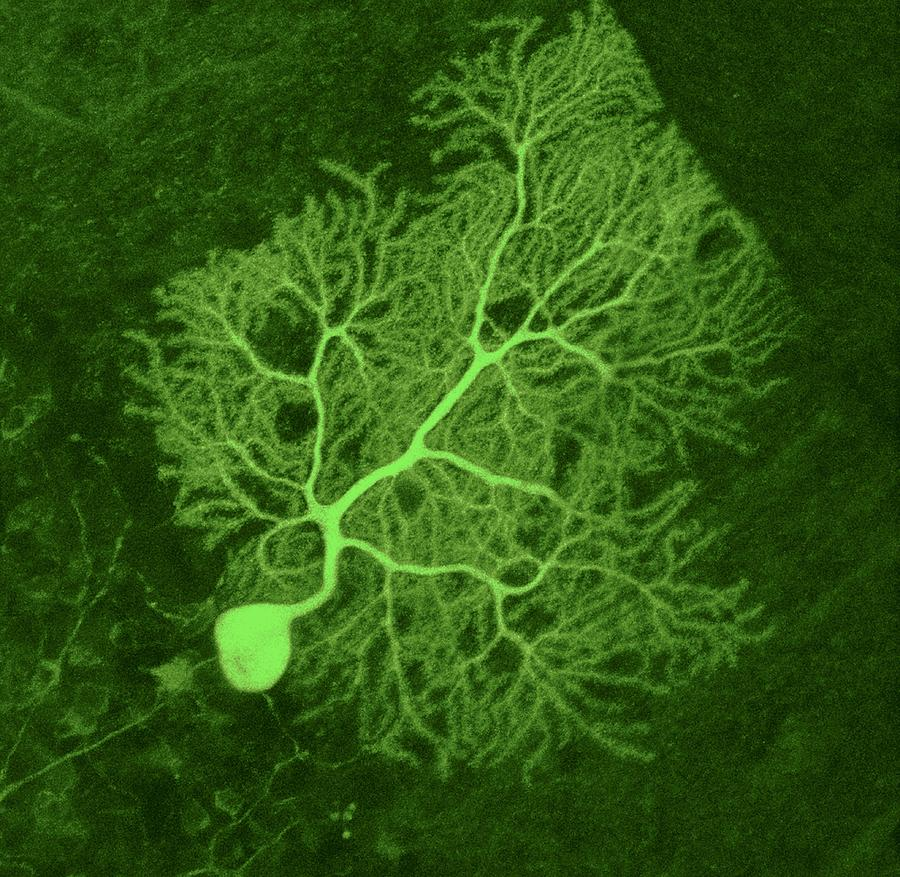 Purkinje nerve cell light micrograph photograph by thomas deerinck ncmir - Pure kindje ...