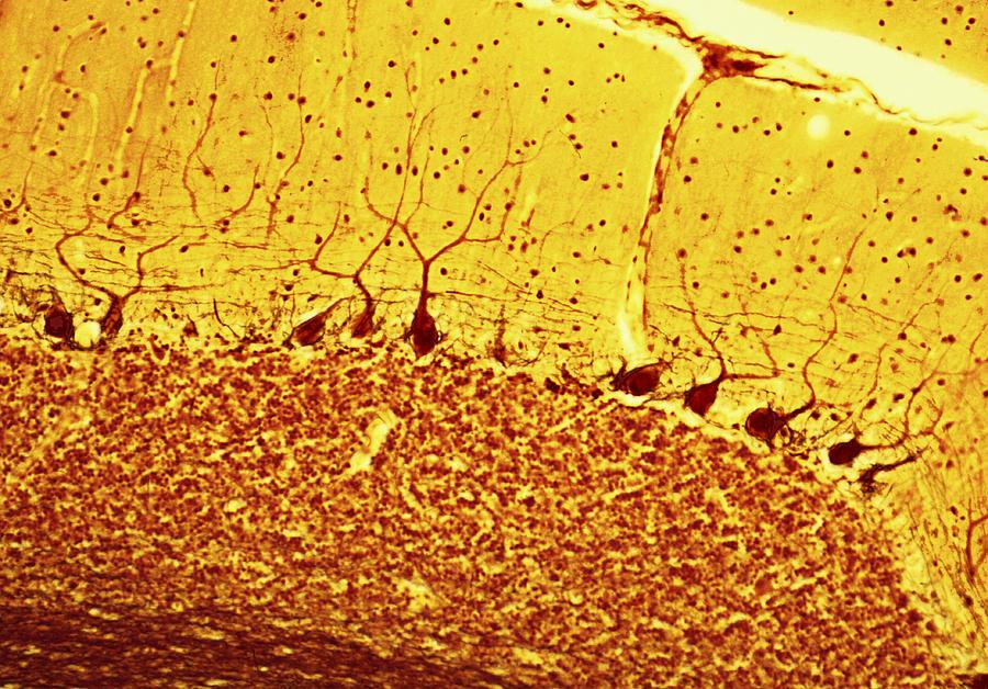 Purkinje nerve cells light micrograph photograph by steve gschmeissner - Pure kindje ...