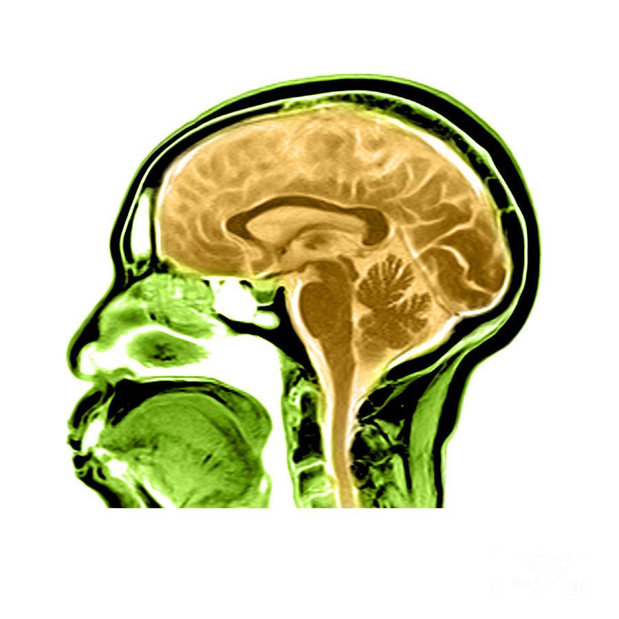 Sagittal View Of An Mri Of The Brain Photograph