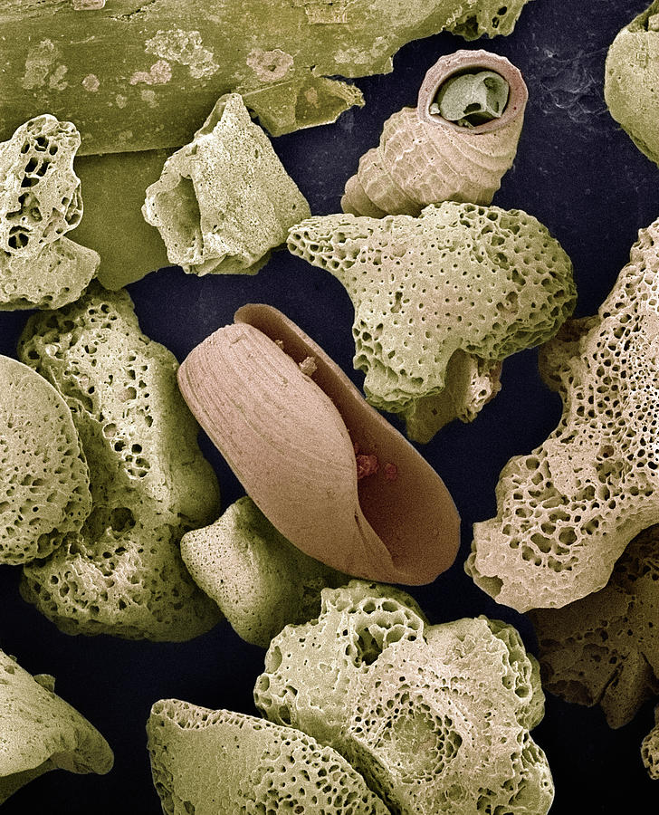 Sem Close-up View Of Foraminiferans Photograph