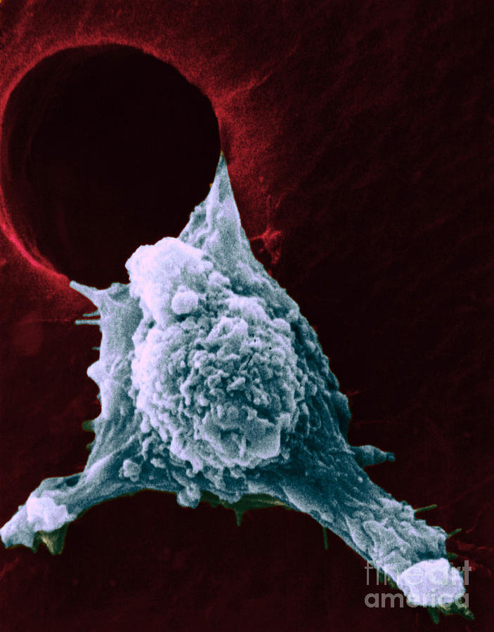Sem Of Metastasis Photograph