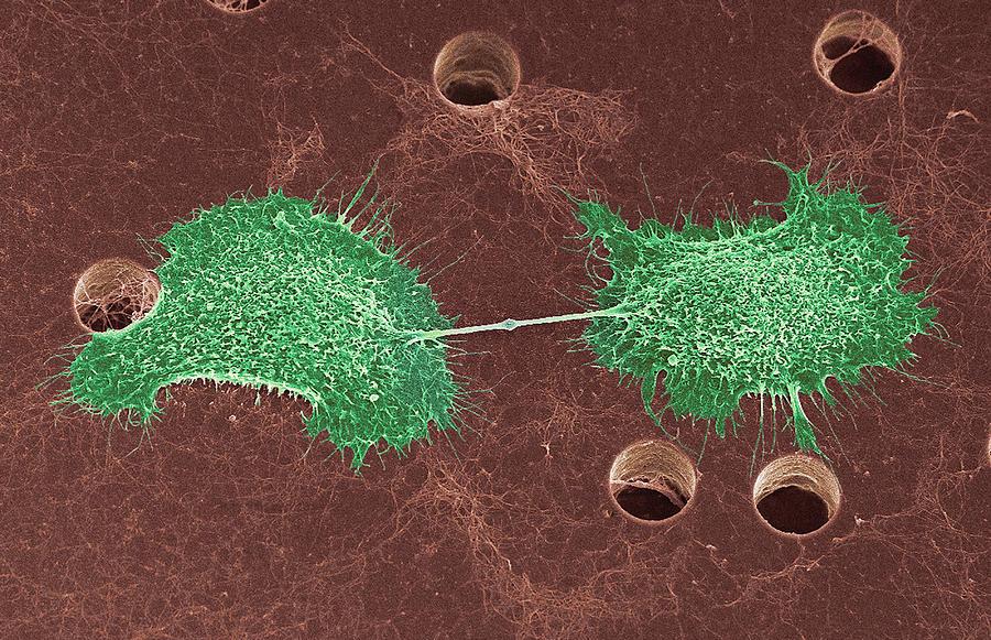 Skin Cancer Cell Dividing, Sem Photograph