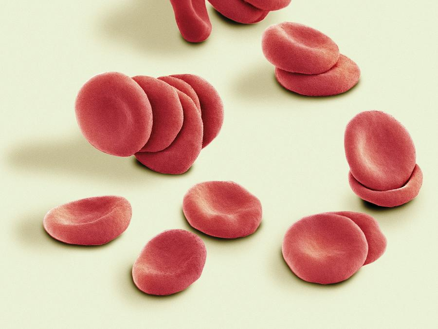 Rouleau Photograph - Stacked Red Blood Cells, Sem by Thomas Deerinck, Ncmir