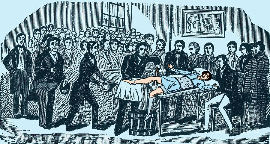 Surgery Without Anesthesia, Pre-1840s Photograph  - Surgery Without Anesthesia, Pre-1840s Fine Art Print