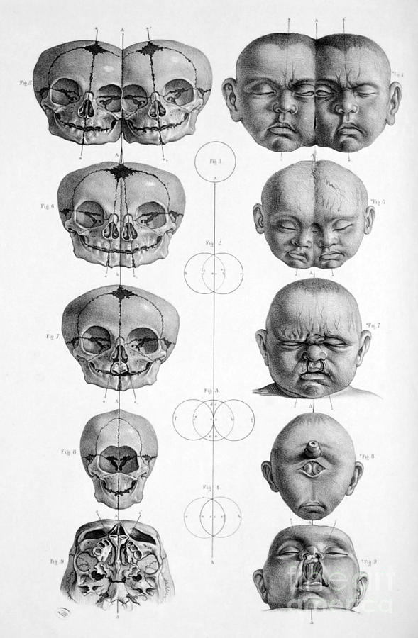 Surgical Anatomy 1856 Photograph