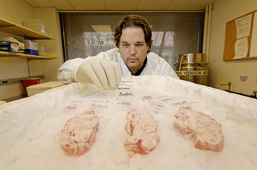 Brain Photograph - Technician Examines Human Brain Sections by Volker Steger