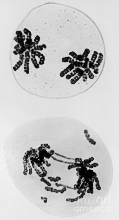 Tem Of Radiation Damage To Chromosomes Photograph