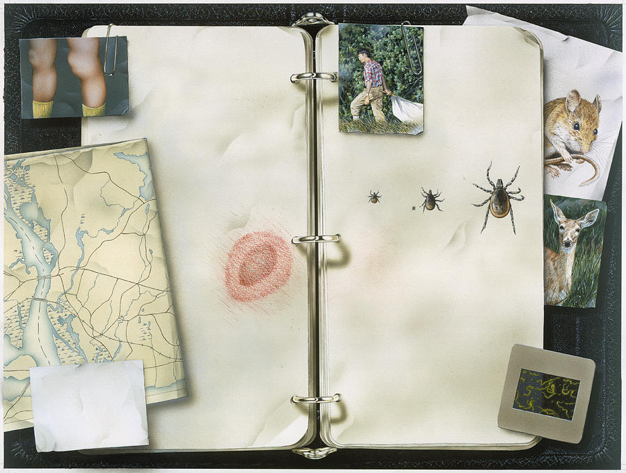 This Artwork Is Called Lyme Disease Photograph
