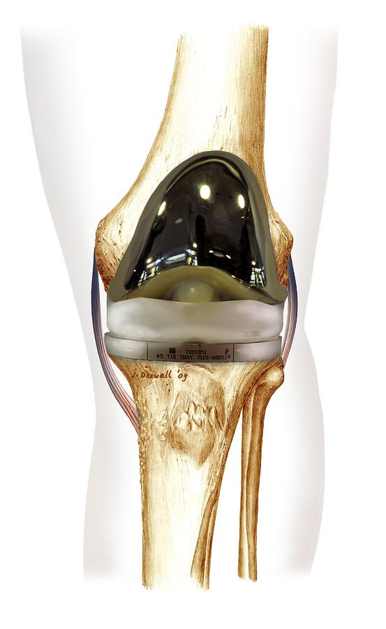 Total Knee Replacement, Artwork Photograph