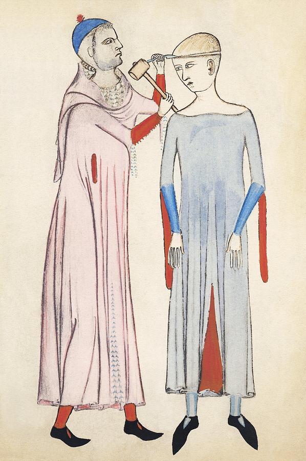 Trepanation, 14th Century Artwork Photograph