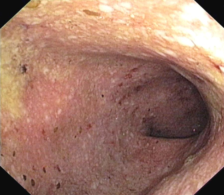 Ulcerative Colitis Of The Sigmoid Colon Photograph