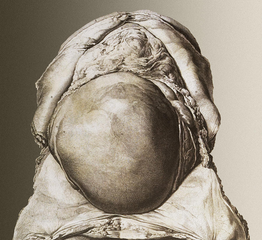 Uterus Photograph - Uterus Of A Pregnant Woman by Mehau Kulyk