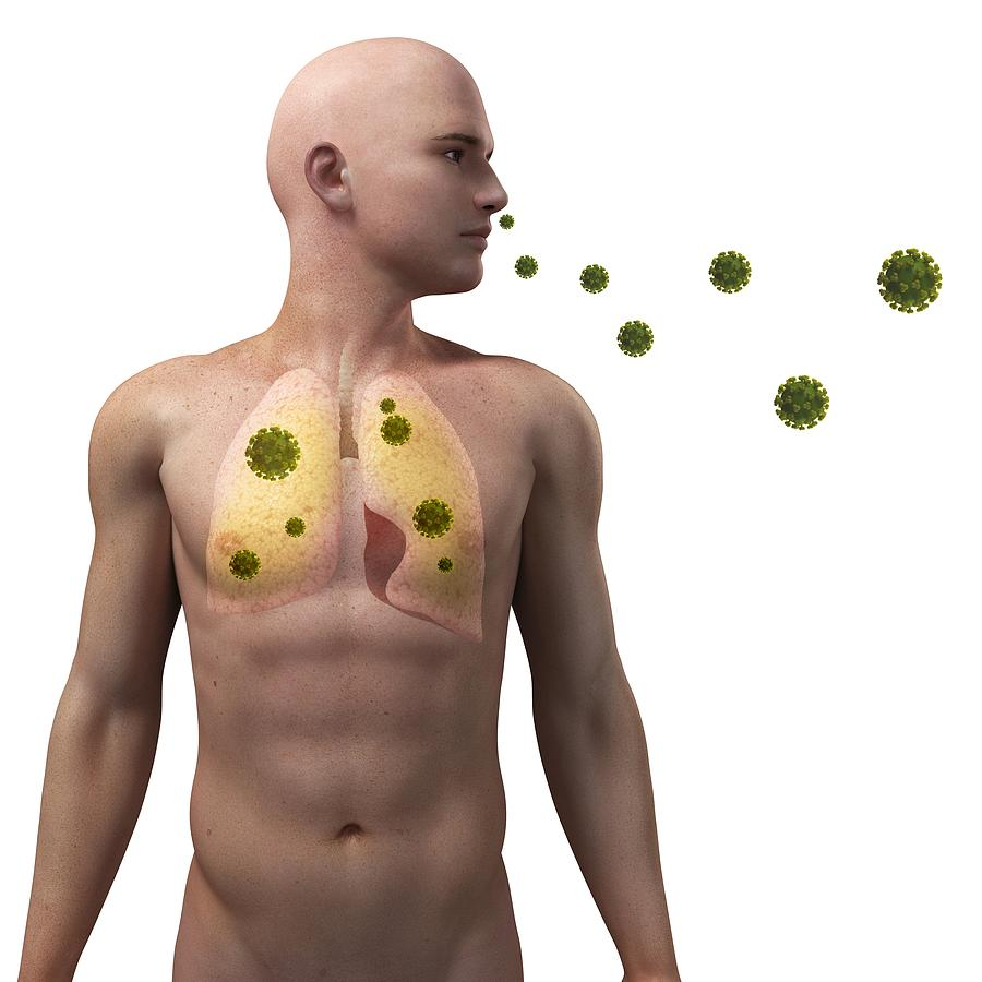 Viral Lung Infection, Conceptual Artwork Photograph