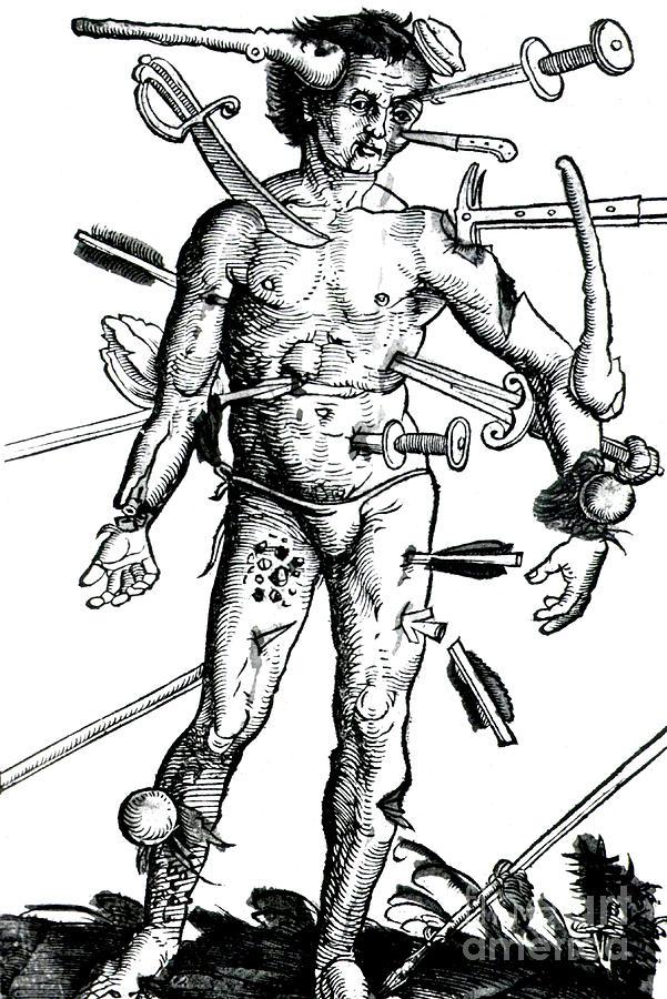 Wound Man 1517 Photograph