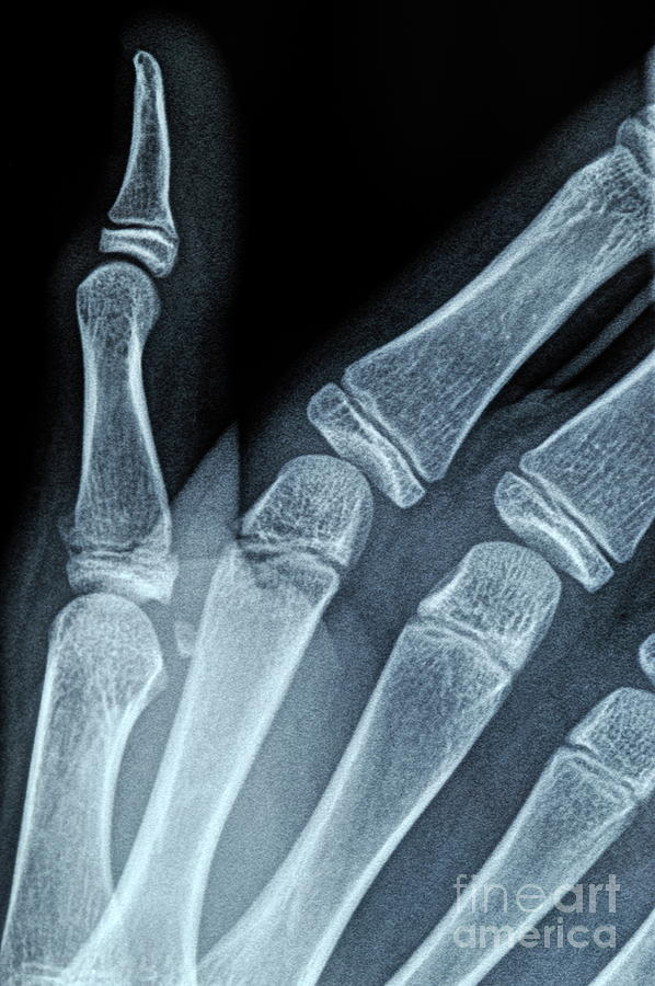 X-ray Image Of Boys Hand Photograph