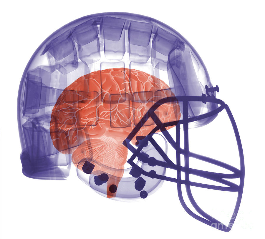 X-ray Of Head In Football Helmet Photograph  - X-ray Of Head In Football Helmet Fine Art Print