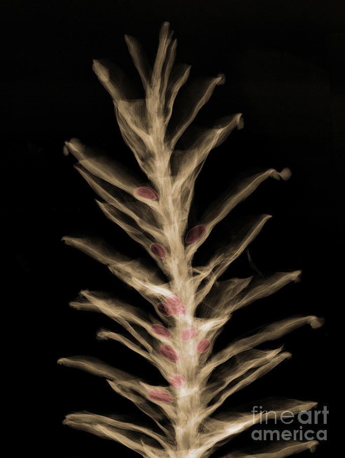 X-ray Of Pinecone With Seeds Photograph