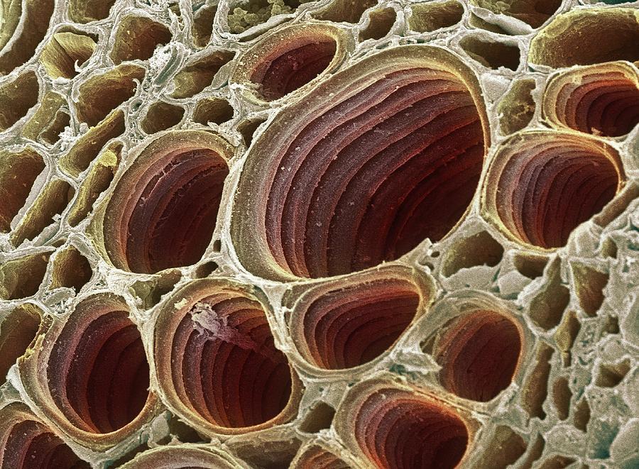 Xylem Plant Cells, Sem Photograph