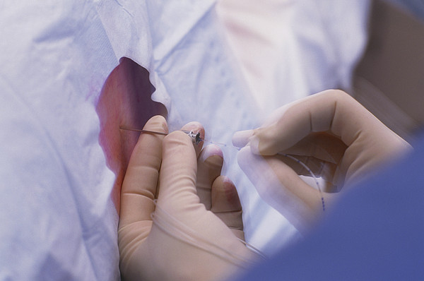Doctor Inserts Catheter For Epidural Anaesthetic Print by David Nunuk