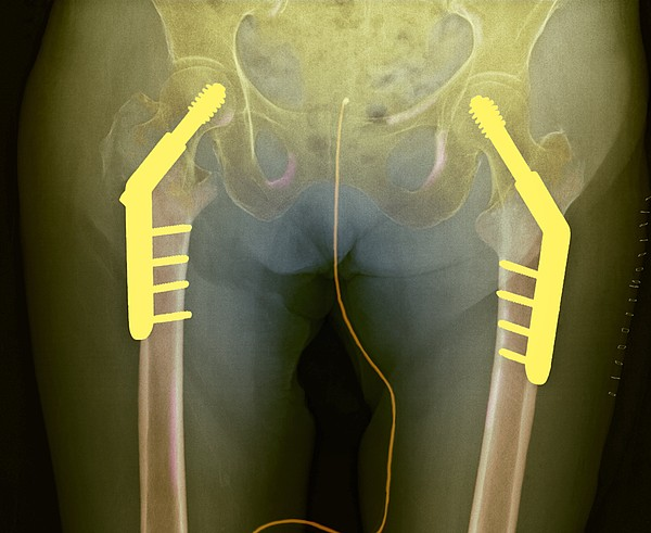 Fixed Double Hip Fracture (image 2 Of 2) Print by Du Cane Medical Imaging Ltd