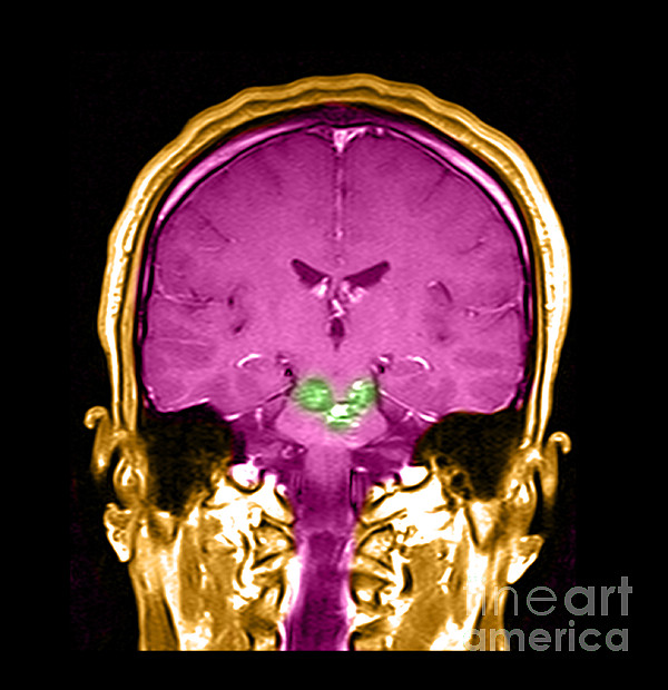 Mri Brainstem Cavernous Malformations Print by Medical Body Scans