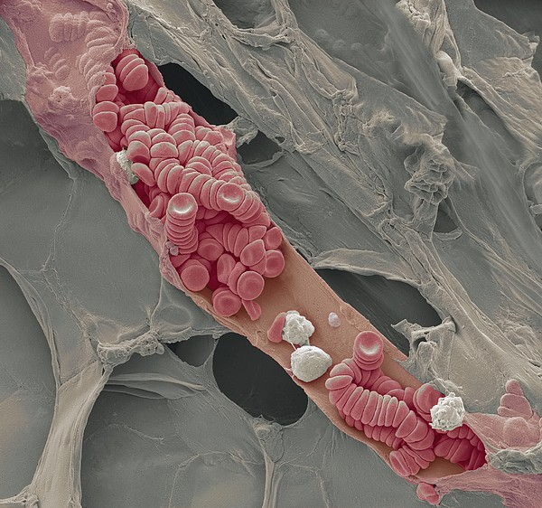 Ruptured Venule, Sem Print by Steve Gschmeissner
