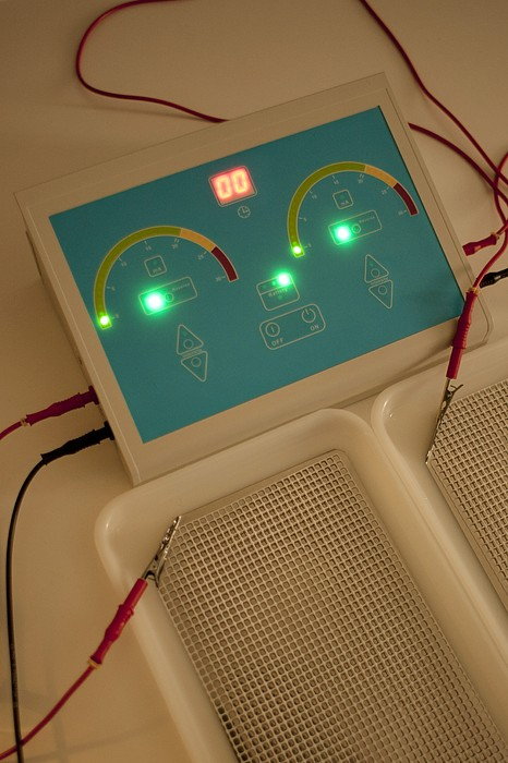 Iontophoresis Equipment Print by