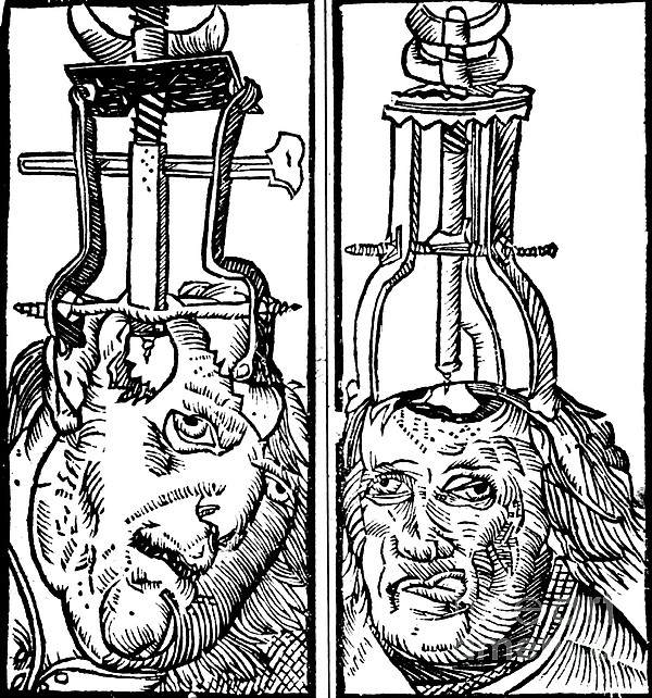 Trepanning 1525 Print by Science Source