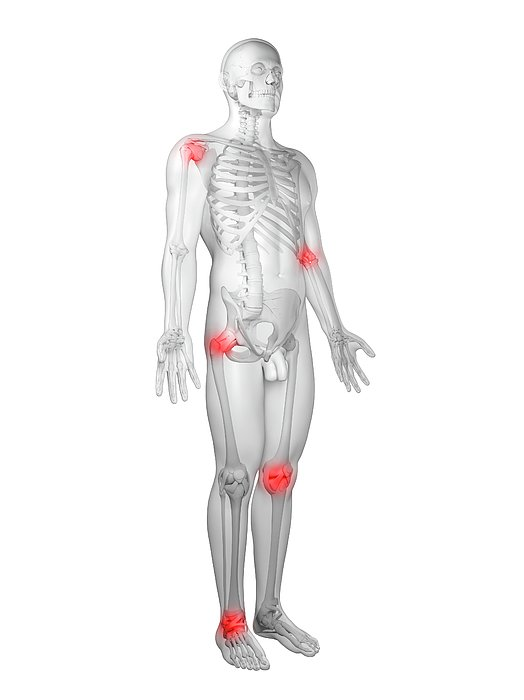Joint Pain, Conceptual Artwork Print by Sciepro