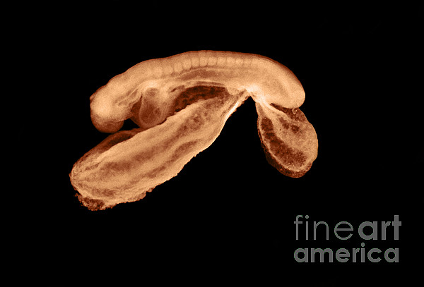 23 Day Old Human Embryo Print by Omikron
