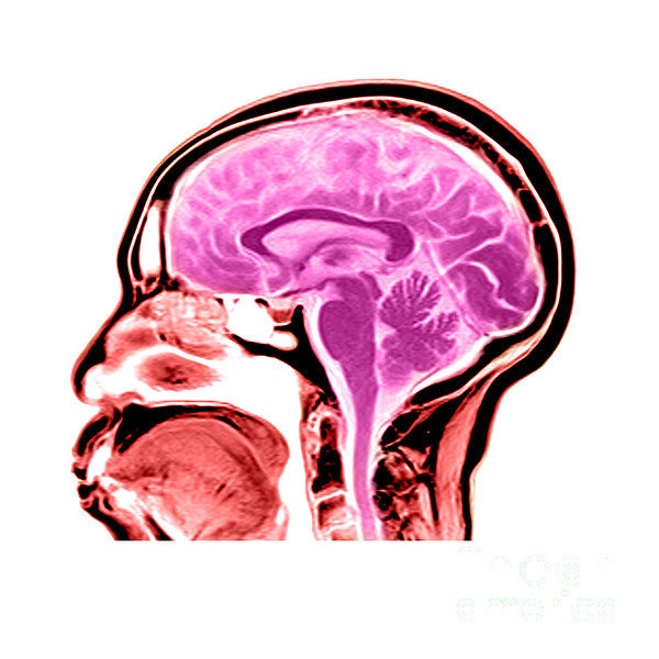 Sagittal View Of An Mri Of The Brain Print by Medical Body Scans