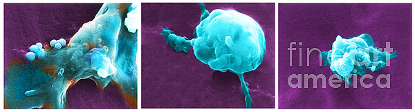 Cancer Cell Death Sequence, Sem Print by Science Source