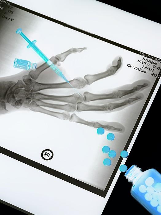 Medical Treatment, Conceptual Image Print by Tek Image