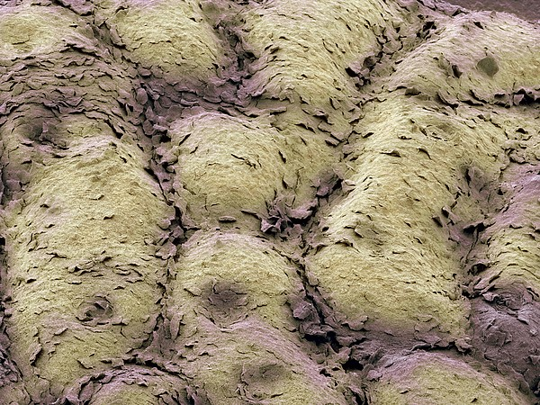 Skin Surface, Sem Print by Steve Gschmeissner