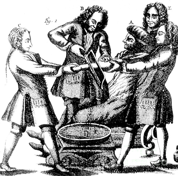 Amputation 1719 Print by Science Source
