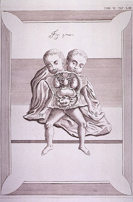 Conjoined Twins With Common Torso Print by Everett