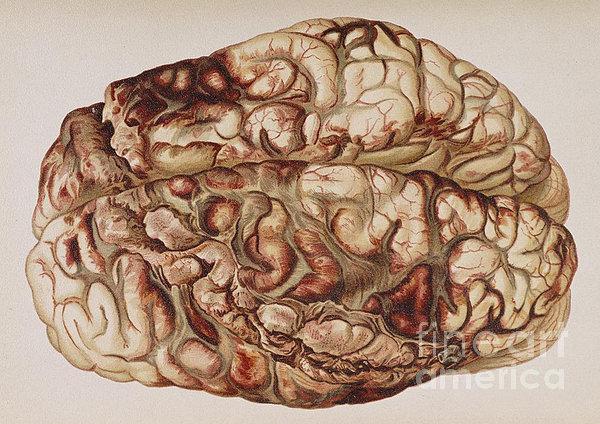 Encircling Gunshot-wound In Brain, 1898 Print by Science Source