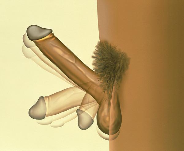 Erecting Penis Print by Henning Dalhoff
