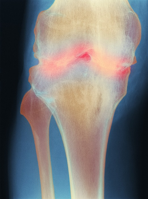 Fused Knee Joint, X-ray Print by