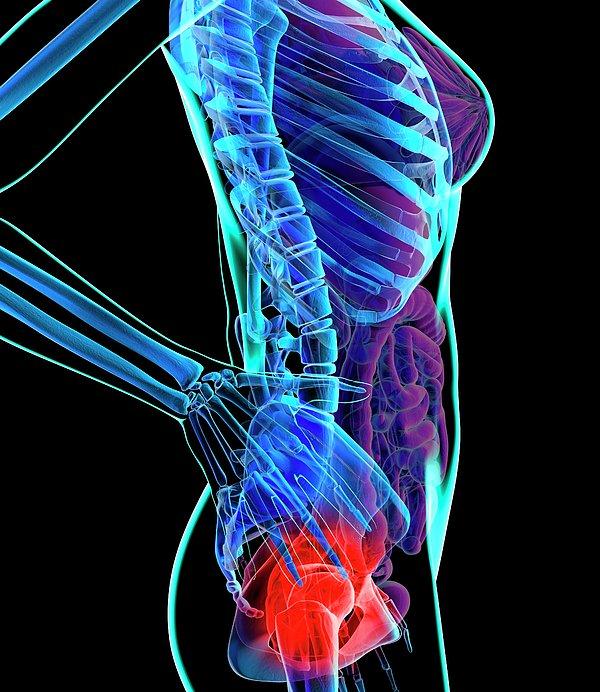 Hip Pain, Conceptual Artwork Print by Roger Harris