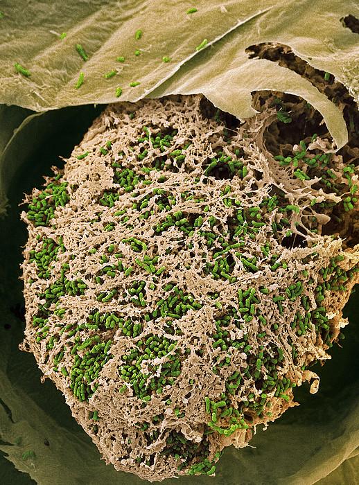 Nitrogen-fixing Bacteria, Sem Print by Steve Gschmeissner