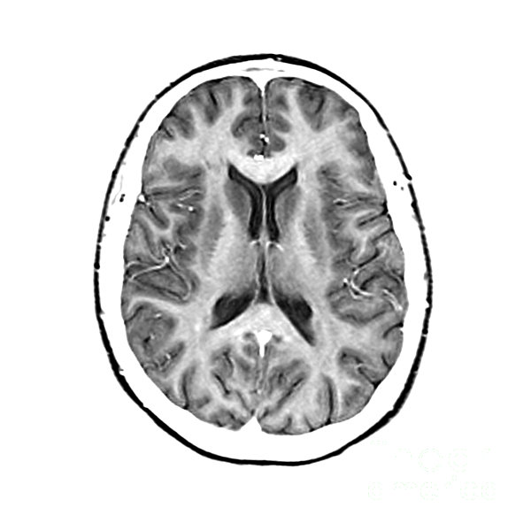 Normal Cross Sectional Mri Of The Brain Print by Medical Body Scans