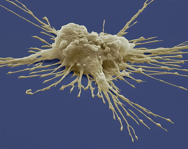 Pluripotent Stem Cell, Sem Print by Steve Gschmeissner