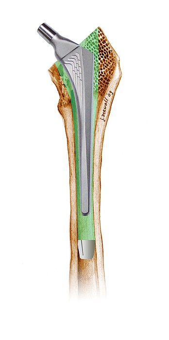 Prosthetic Hip Joint, Artwork Print by D & L Graphics