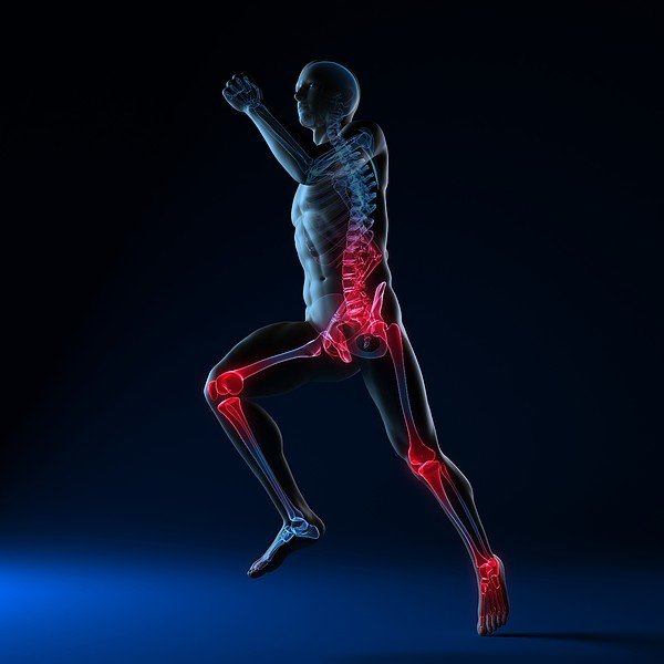 Running Injuries, Conceptual Artwork Print by Sciepro
