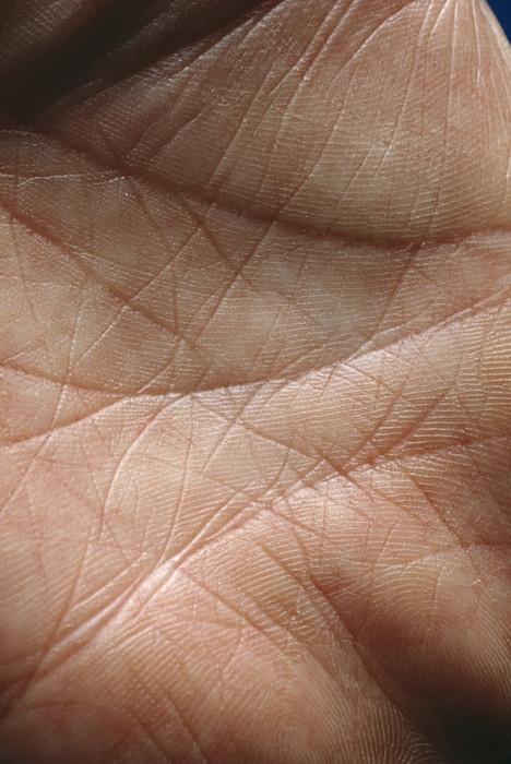 Skin Print by Mike Devlin