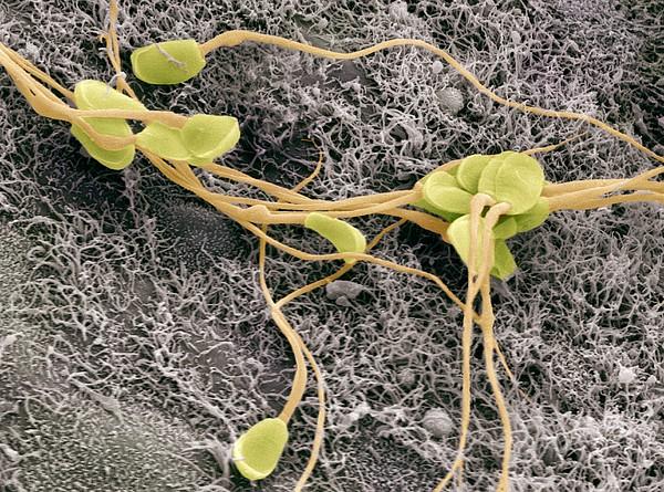 Sperm, Sem Print by Steve Gschmeissner