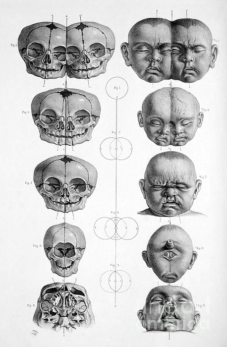 Surgical Anatomy 1856 Print by Science Source