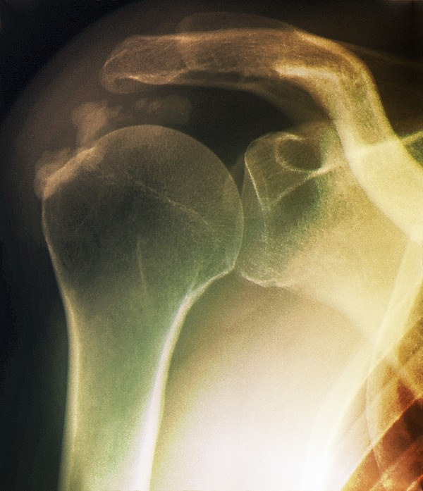 Tendinitis Of The Shoulder, X-ray Print by Zephyr